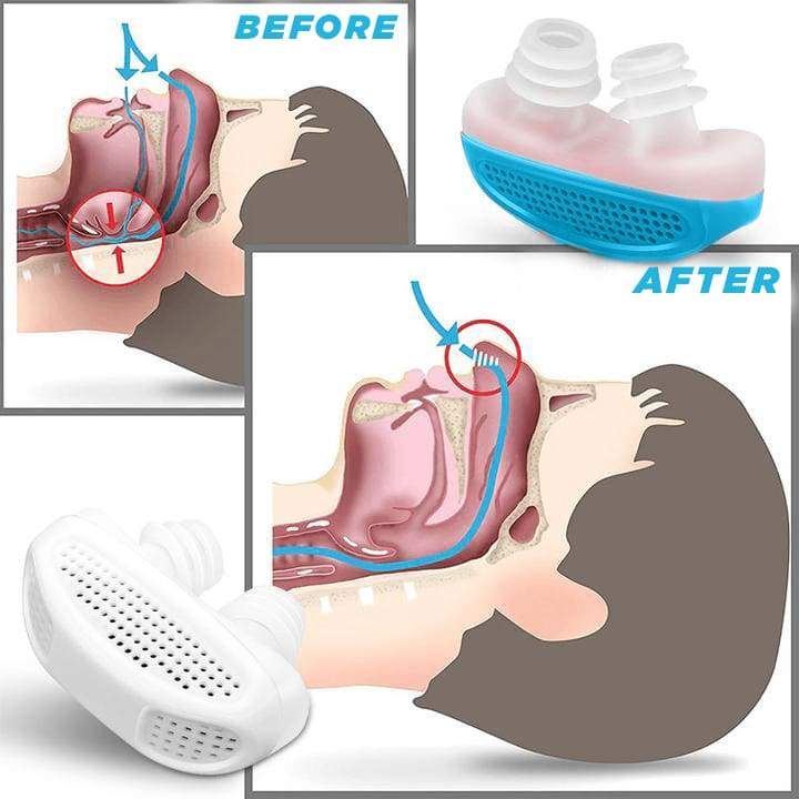 Anti Snore Silencer Device
