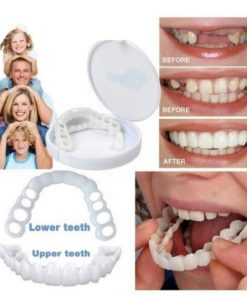 Perfect Smile Snap On Braces