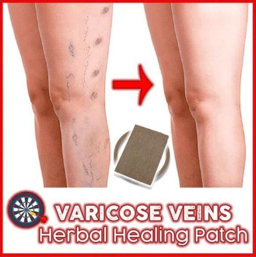 Varicose Veins Herbal Healing Patch