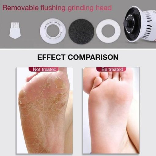 Electric Foot File Callus Remover Pedicure